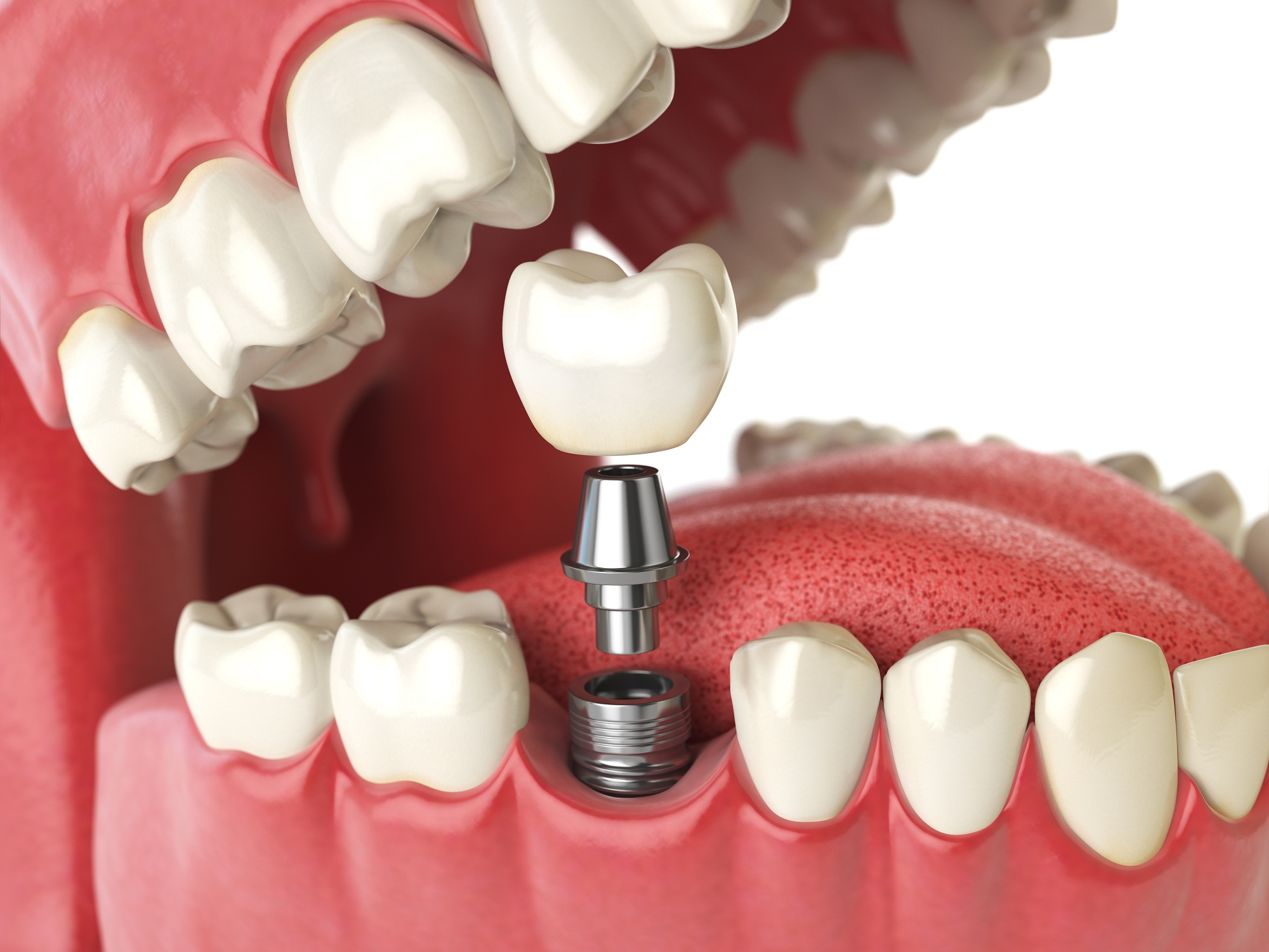 Dental Implants Manchester – Does The Procedure Hurt