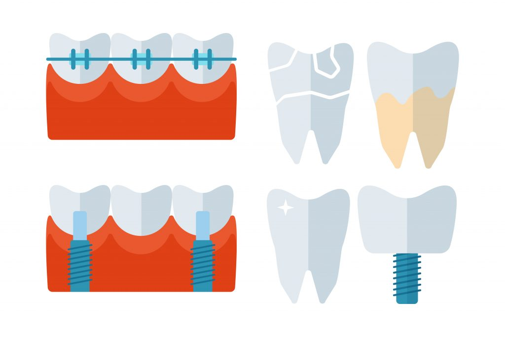 Dental Implants Manchester – Is It Best Before Or After Braces