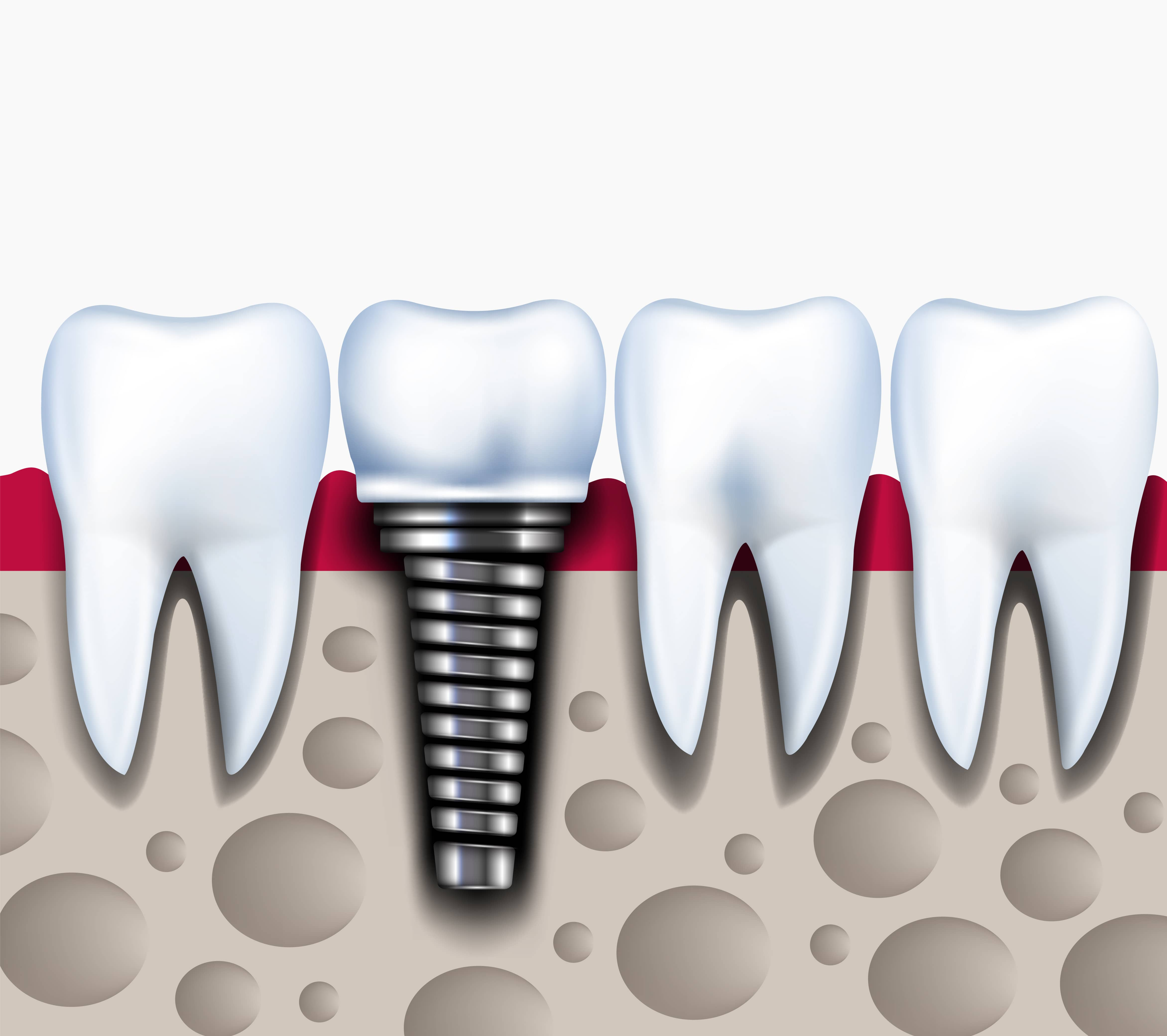 Dental Implants Manchester – Missing Teeth Replacement At Its Best