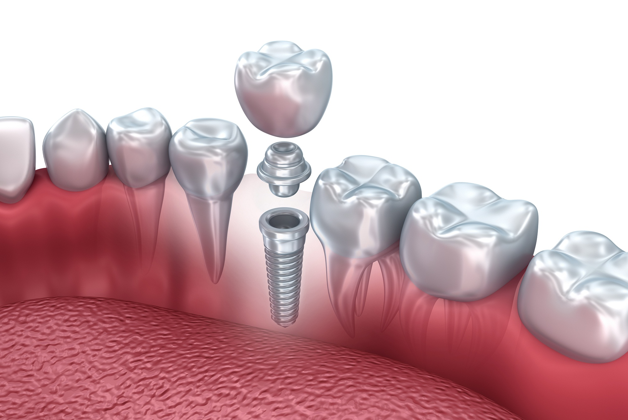 Dental Implants Stockport – Why Are They So Expensive?