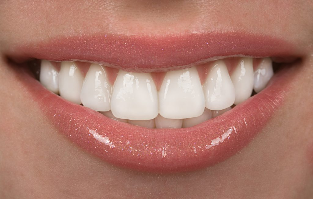 Smile Makeovers – Dental Implants Manchester And More!