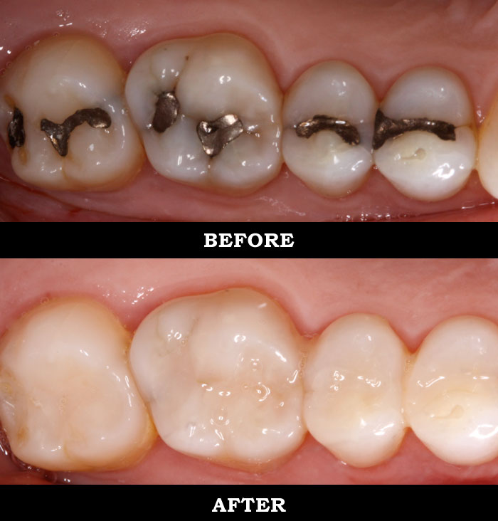 Teeth Whitening Manchester Composite Fillings