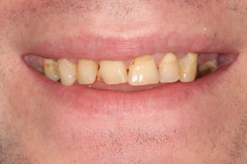 Dental Implant Manchester