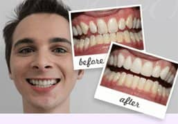 Smile gallery - Cheadle Hulme - Church Road Dental and Cosmetics