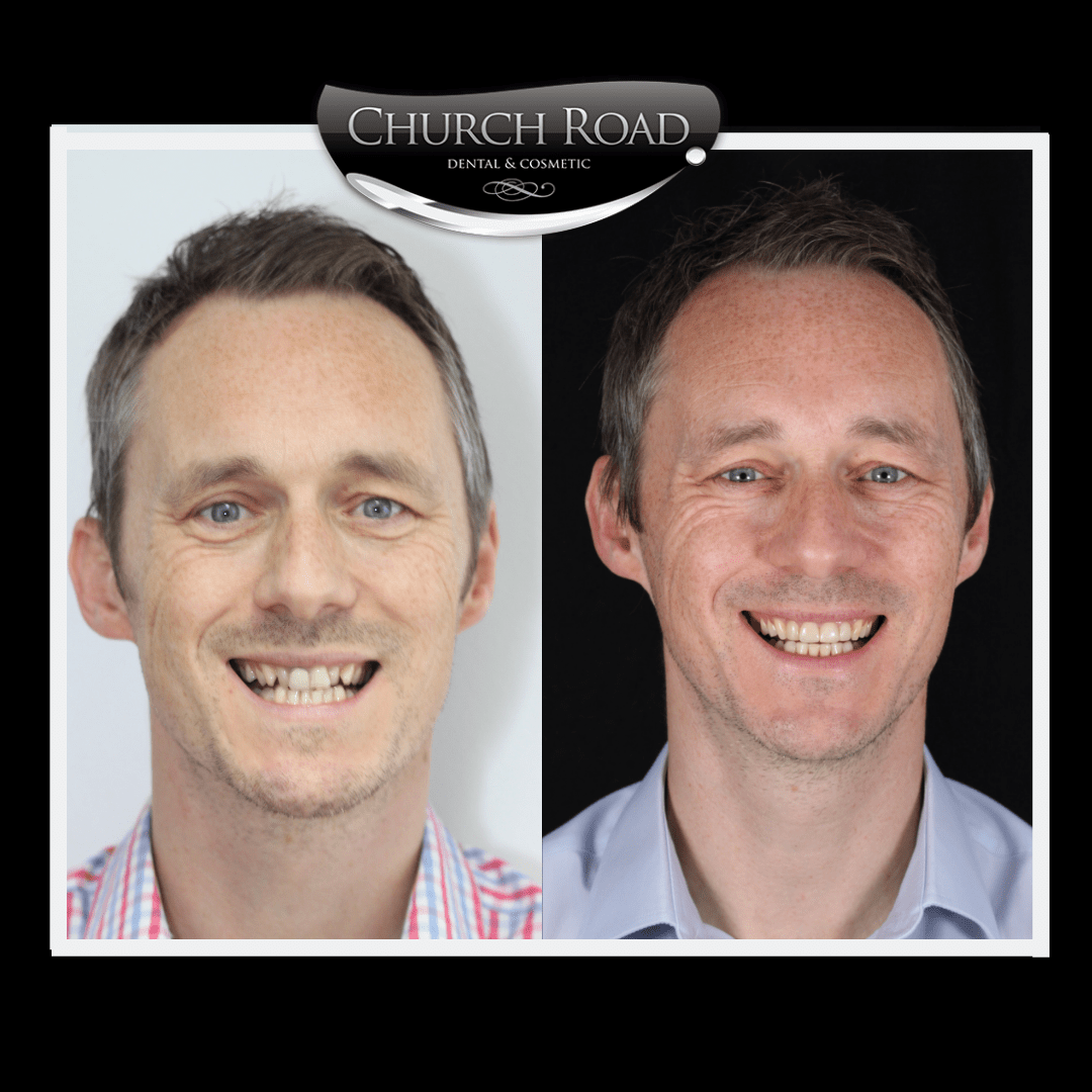 Composite veneers at Church Road Dental and Cosmetics, Cheshire