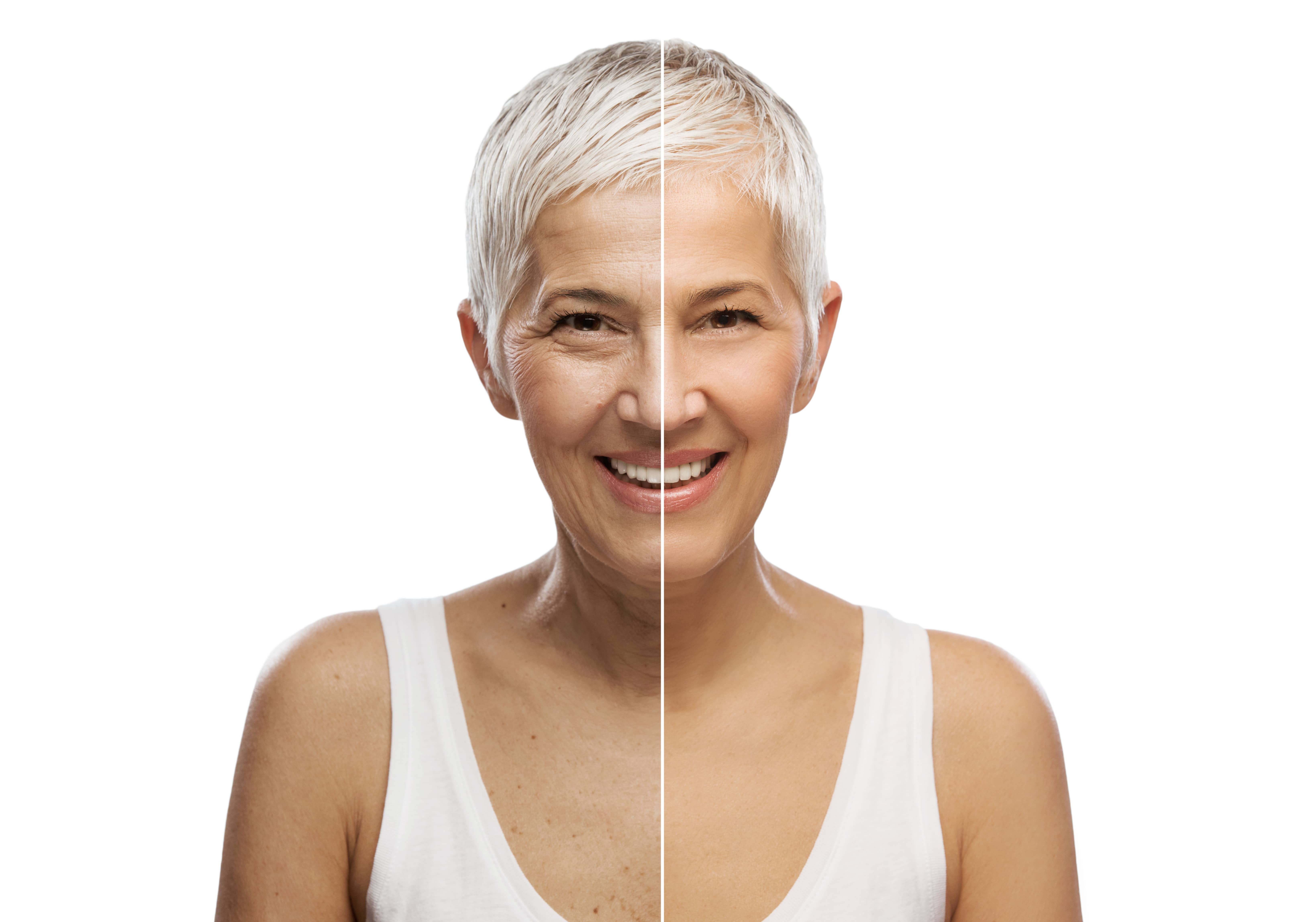 A Quick Look at Botox and Its Uses