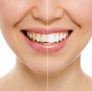 Cheadle Dental Cosmetic Dentistry