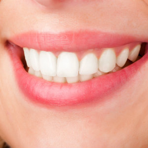 Cheadle Dental What A Private Cosmetic Cheadle Hulme Dentist Can Do For You