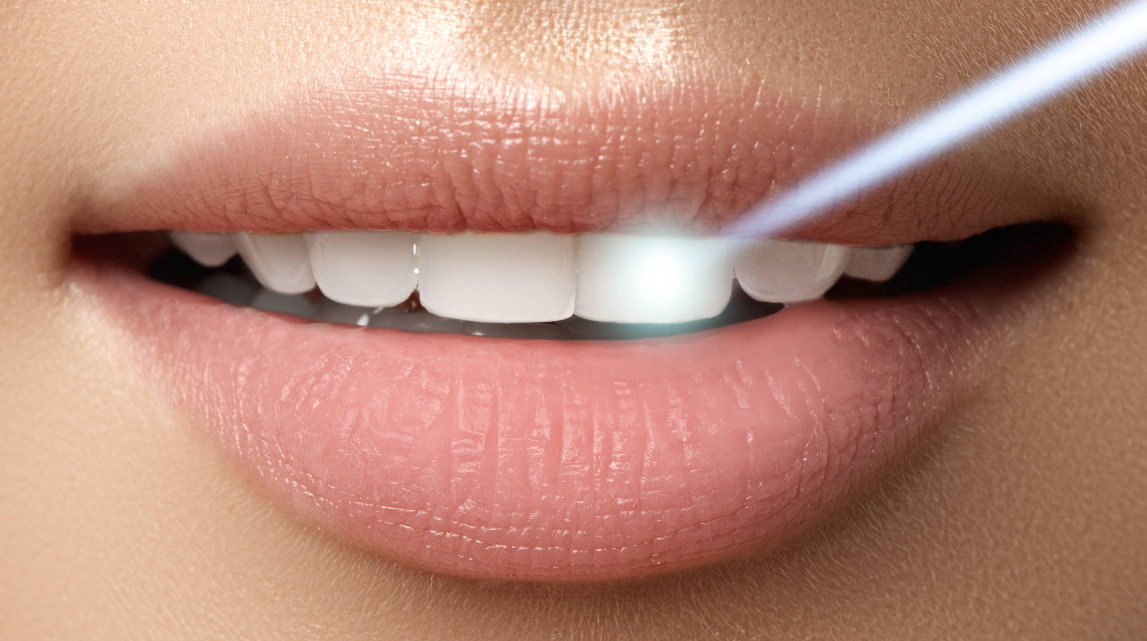отбеливание зубов владикавказ