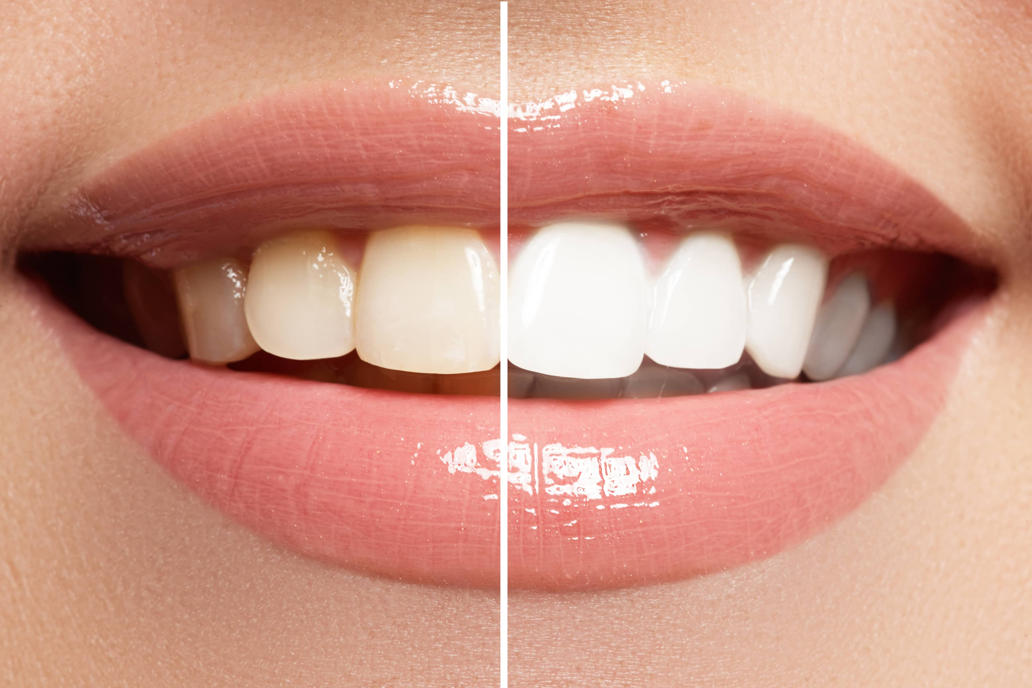 Top Reasons to Brighten Your Smile With Manchester Teeth Whitening