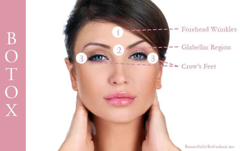 common-botox-areas