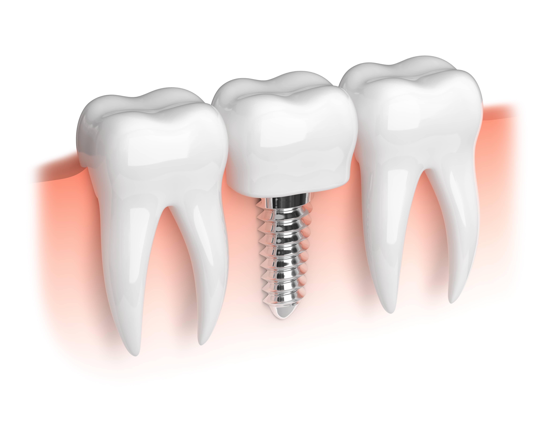 Finding dentists for Dental Implants Uk