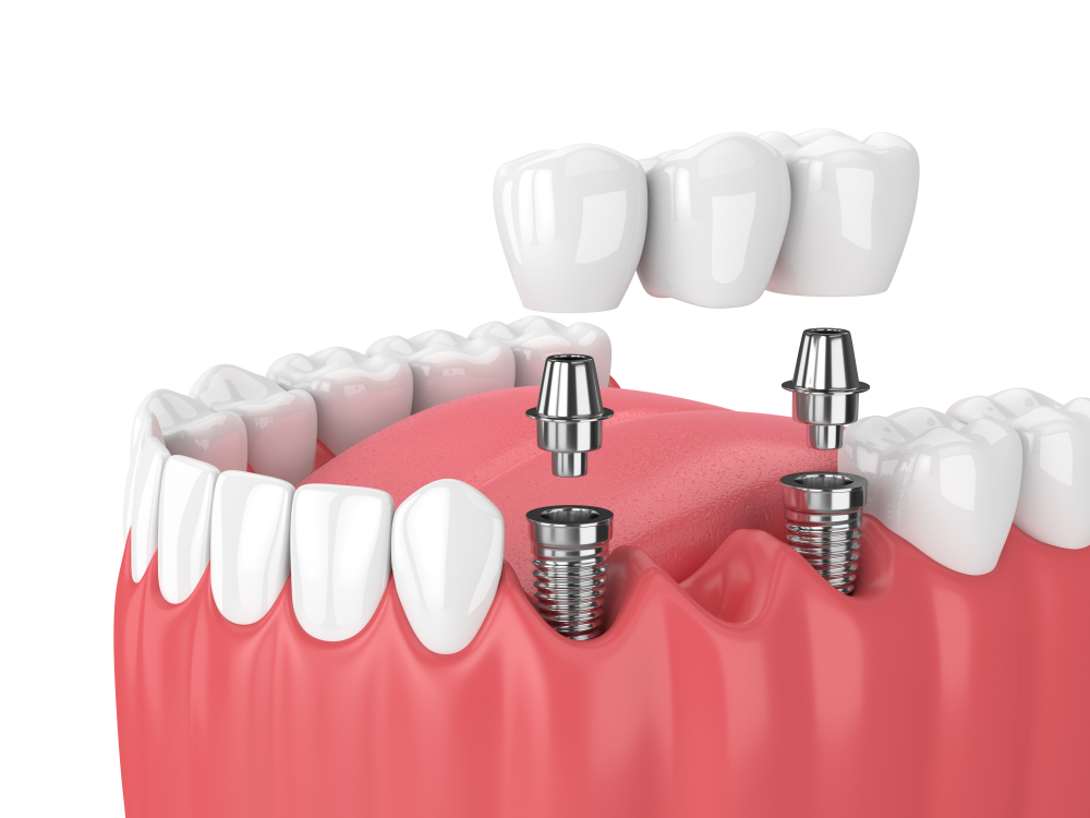Dental Implants in Manchester vs A Dental Bridge