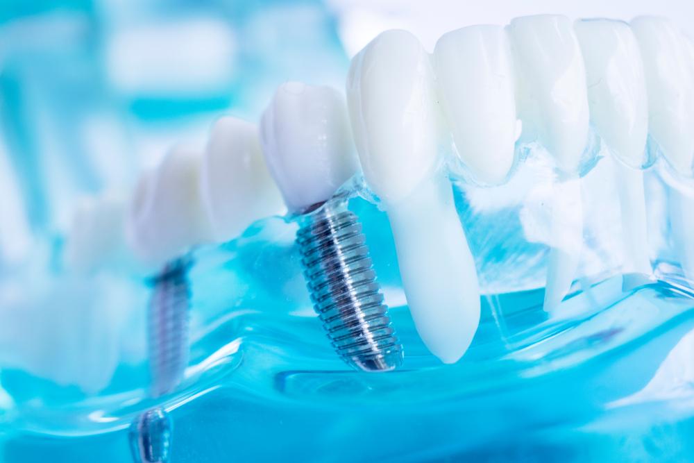 Dental Implants Stockport