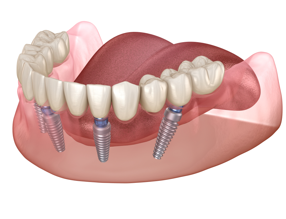 All-On-4 Dental Implants in Manchester