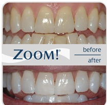 results achieved from zoom teeth whitening treatment
