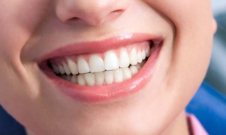oralhealth, dentalhealth, dentist, teeth,