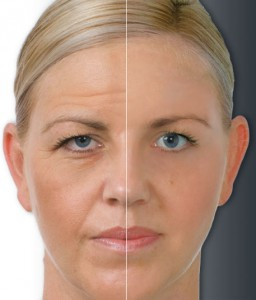 Wrinkle Removal Manchester