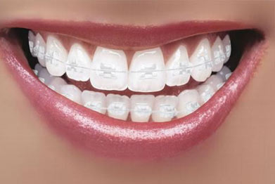Image result for fixed tooth coloured orthodontics simply smile