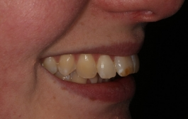 Smile Gallery - Church Road Dental and Cosmetic