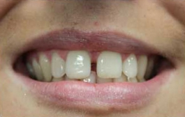 Before - Church Road Dental Practice